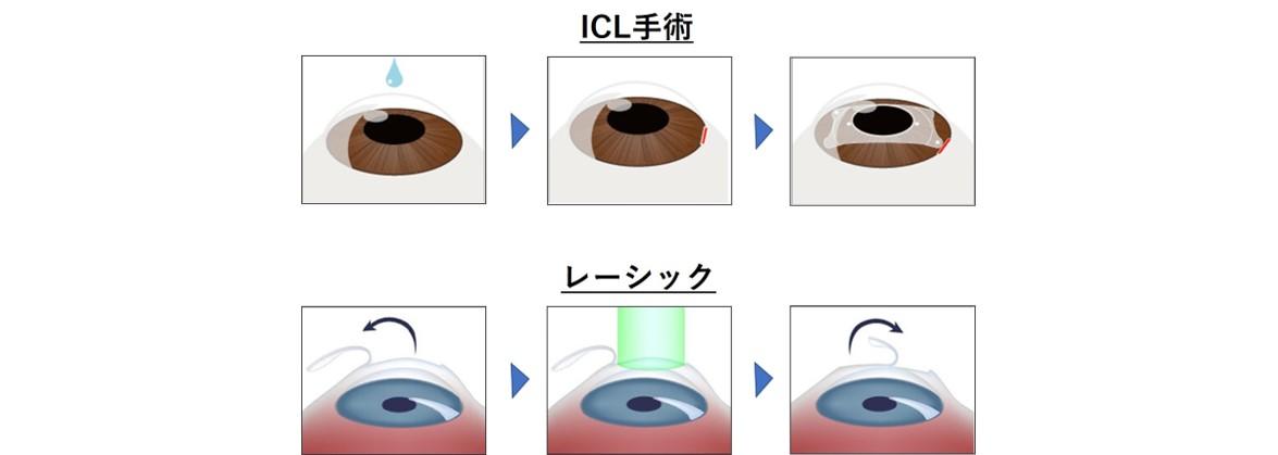 角膜を削らないので 見え方の質が高い